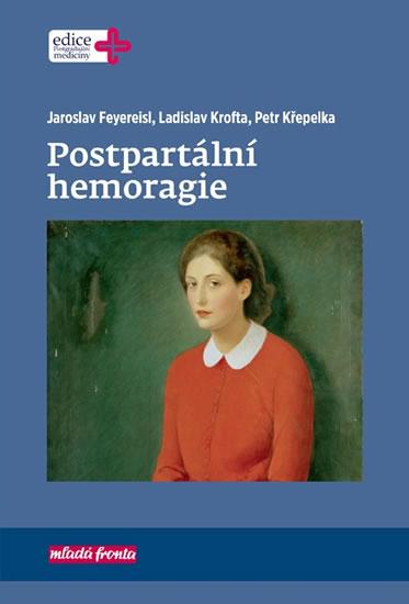 Postpartální hemoragie