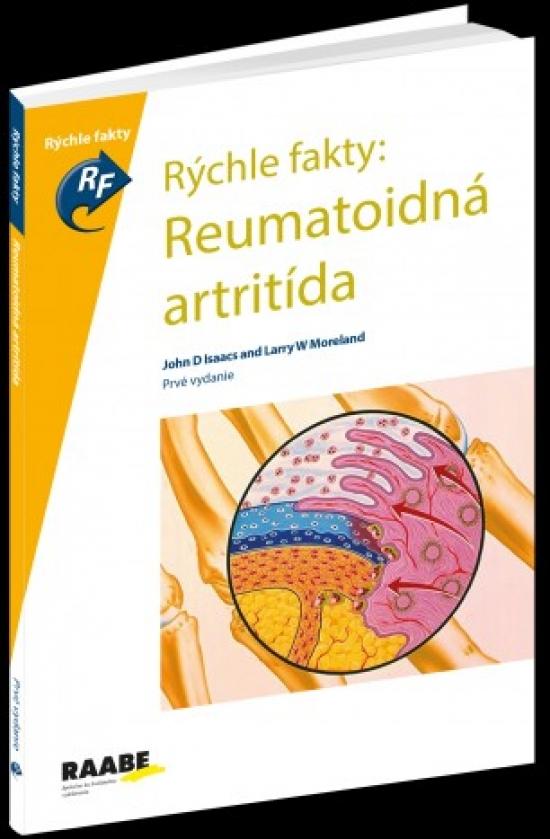 Rýchle fakty: Reumatoidná ARTRITÍDA